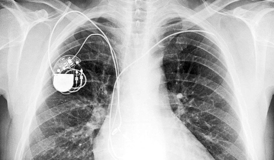 hack pacemaker