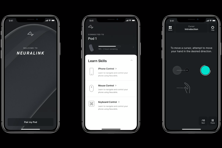Application mobile de Neuralink