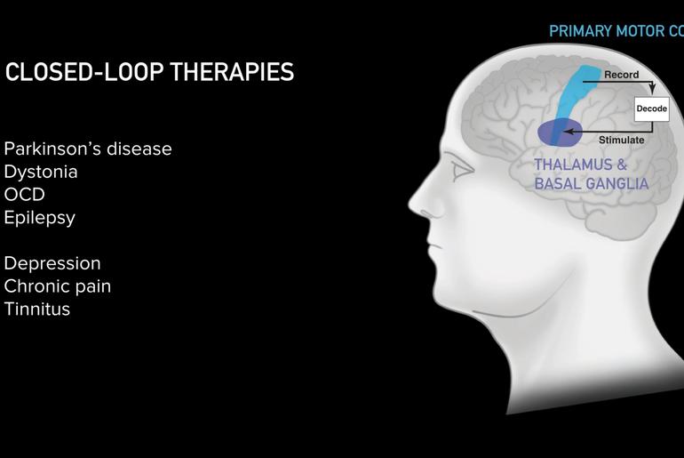 Le traitement de maladies neurologies grâce aux ICM de Neuralink ?