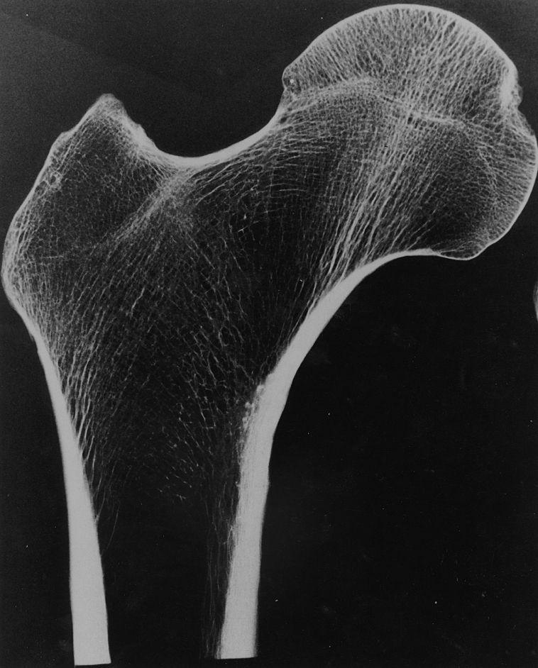 La structure d'un os