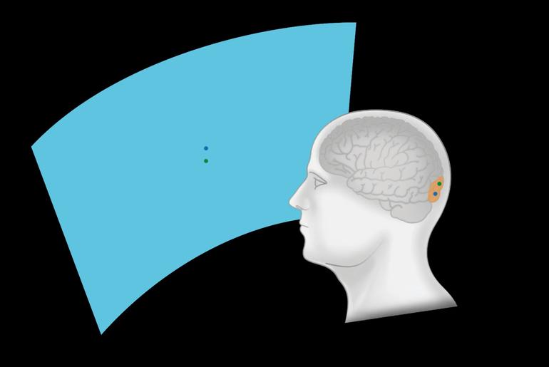 Retrouver la vue grâce à Neuralink, est-ce un doux rêve ?