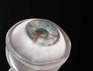 Aperçu de la cornée artificielle.
