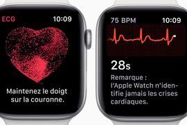 L'électrocardiogramme arrive sur les Apple Watch de France et d'Europe
