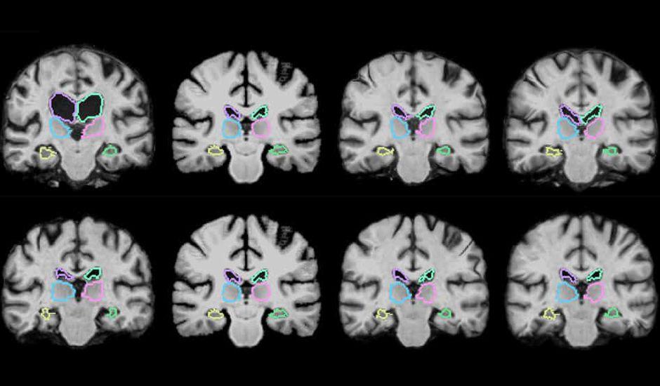 MIT Cartographie cérébrale