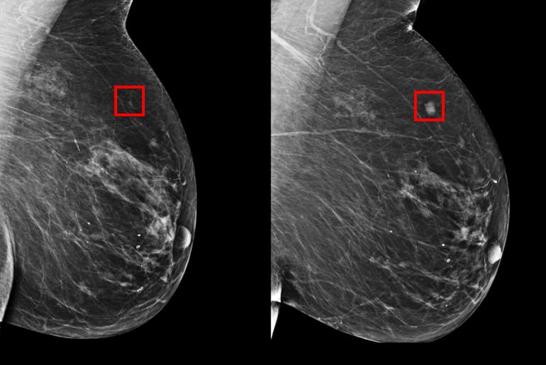 Le MIT créé une IA pour détecter le cancer du sein.