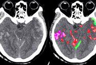 Un algorithme aide les médecins à détecter les hémorragies cérébrales