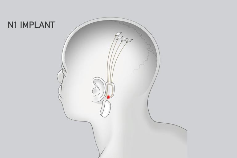 Transmission des puces de Neuralink vers le boîtier