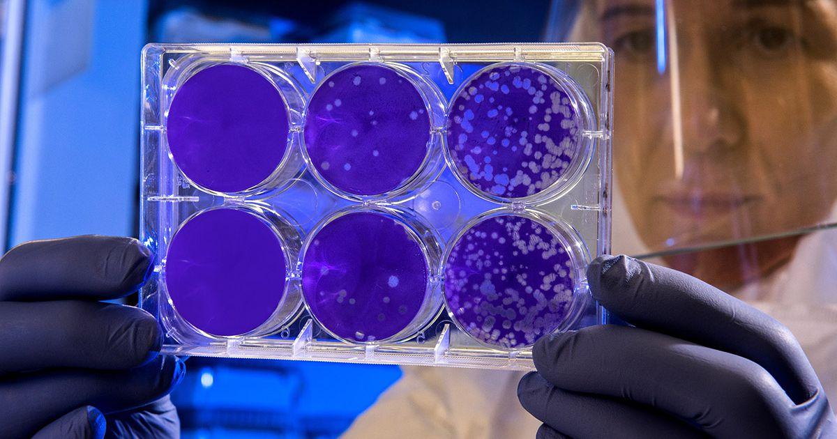 Une intelligence artificielle a réussi à concevoir l'un des antibiotiques les plus puissants au monde