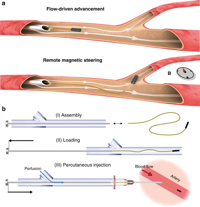 Le schéma présentant la manière dont la sonde de neurochirurgie traverse le système vasculaire cérébral