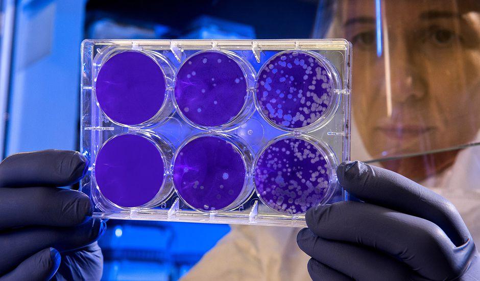 Intelligence artificielle : un chercheur tient des colonies de bactéries dans les mains